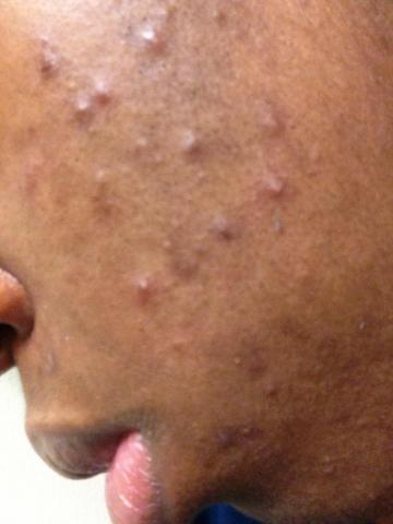 My Acne.org progress
