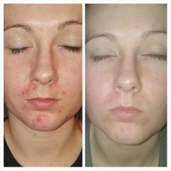 4 days of following acne.org regimen