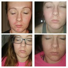 My log of acne.org