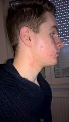 Acne Progression (Update Daily)