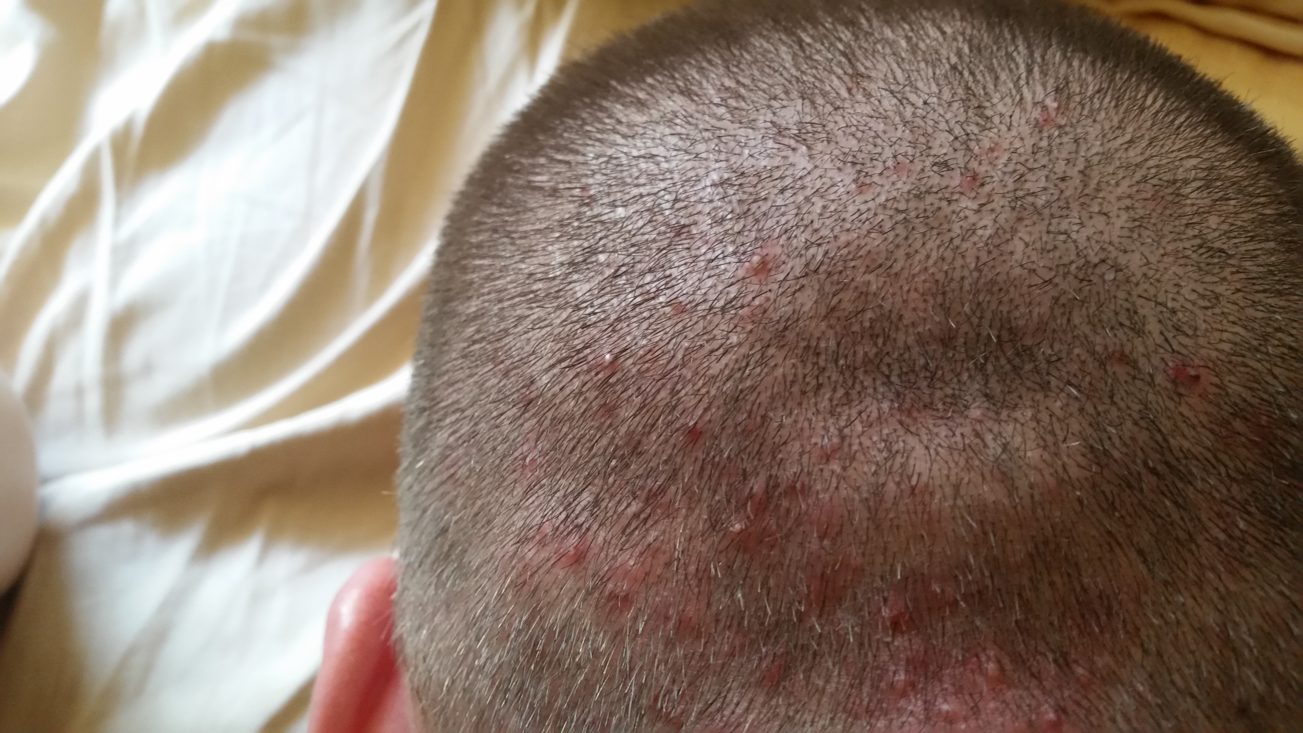 Scalp Acnefolliculitis Pictures General Acne Discussion By