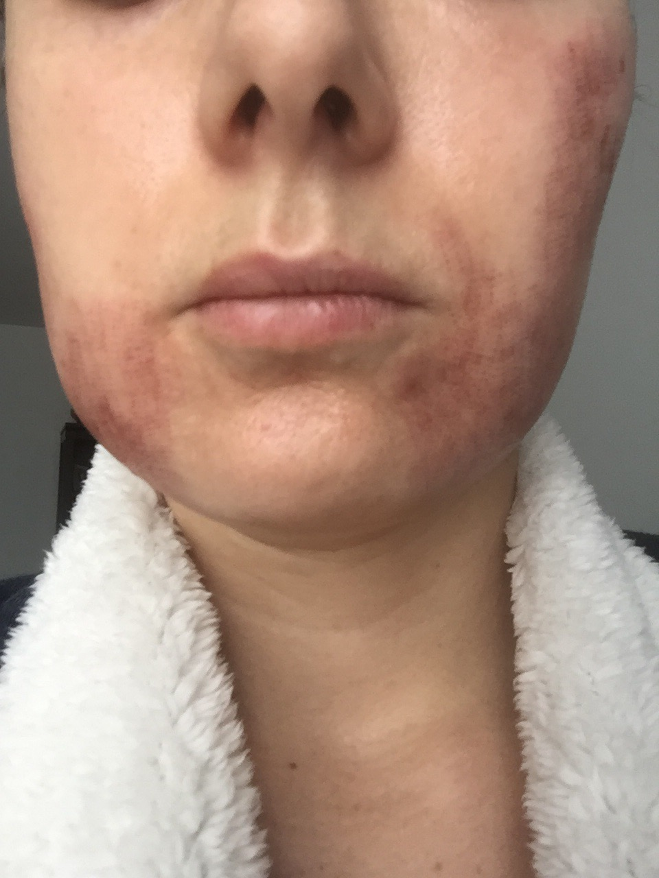 Has anyone used Infini RF? - Scar treatments - Acne org