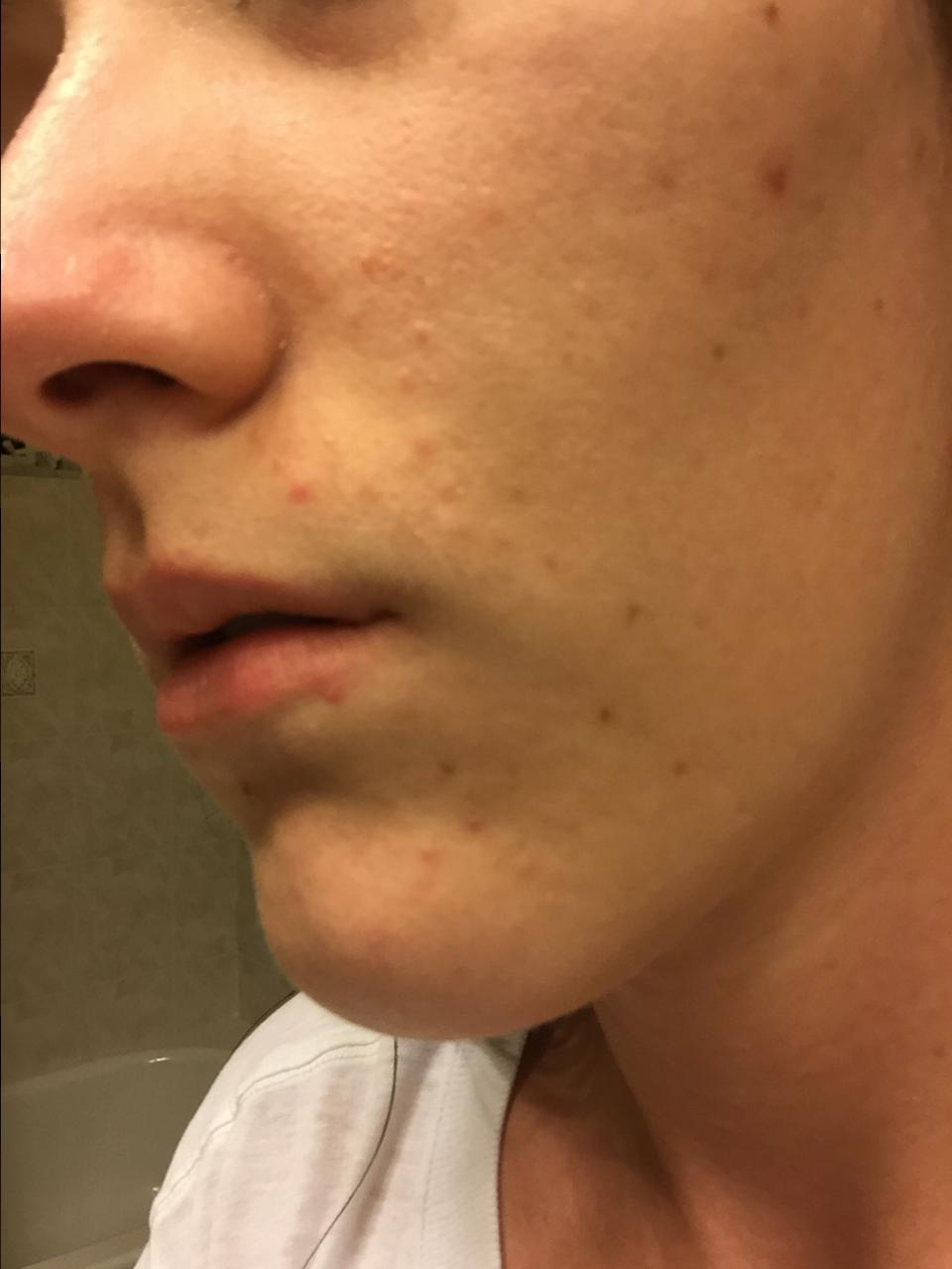 Second Course Of Accutane Accutane Isotretinoin Logs