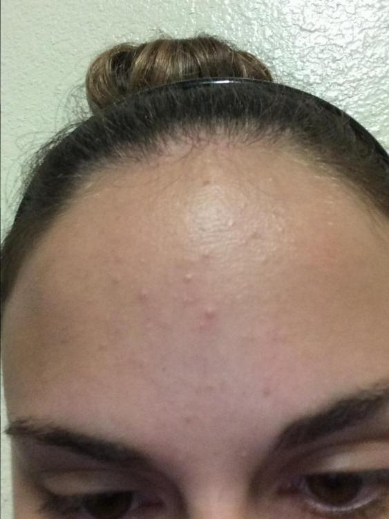 Keratosis Pilaris on the Face? - General acne discussion ...