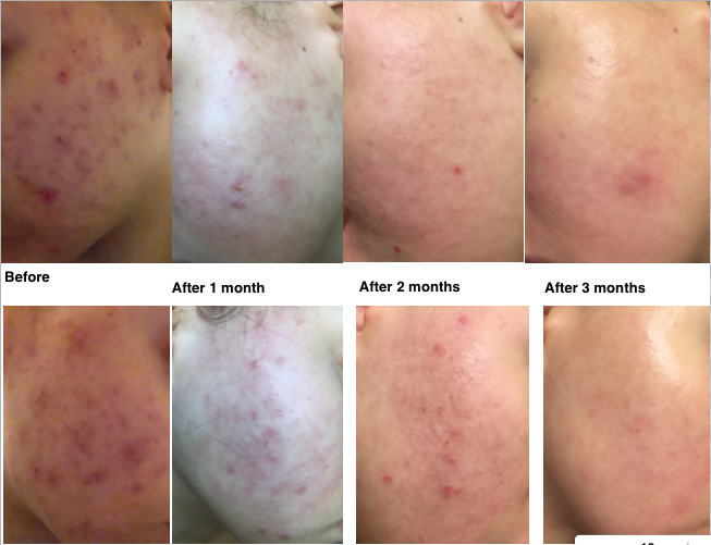 Epiduo Before And After Results | www.imgarcade.com