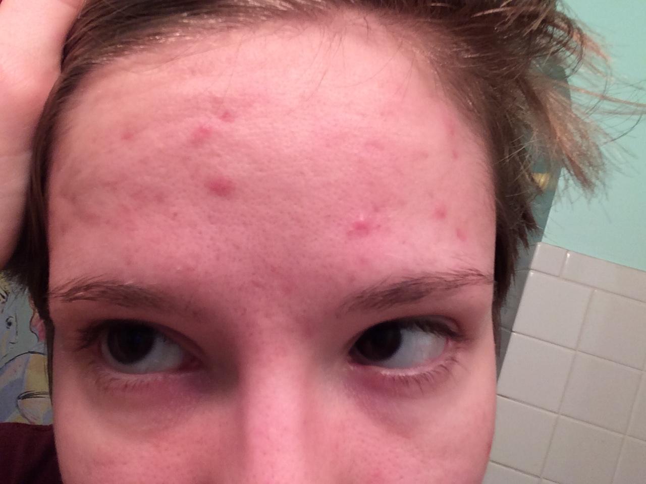 Mircette Birth Control Reviews Acne