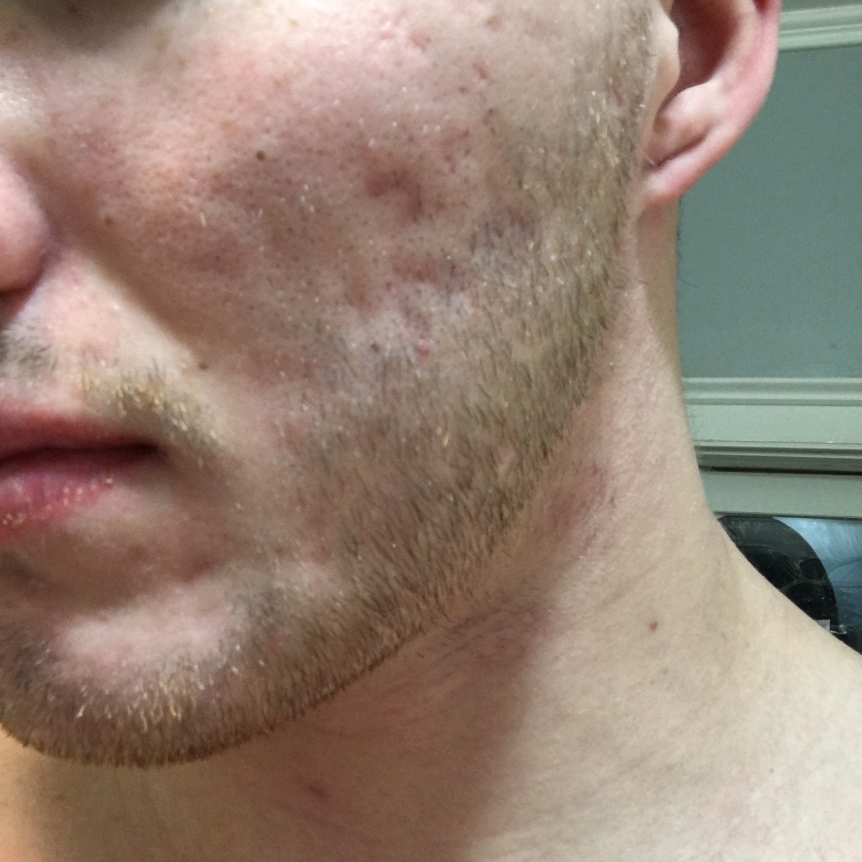 bad scarring on chest and back dark spots on face scar