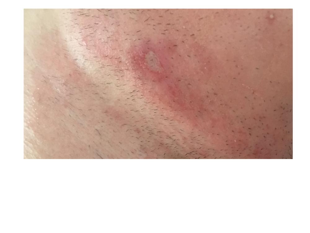 Pictures Of Infected Scabs