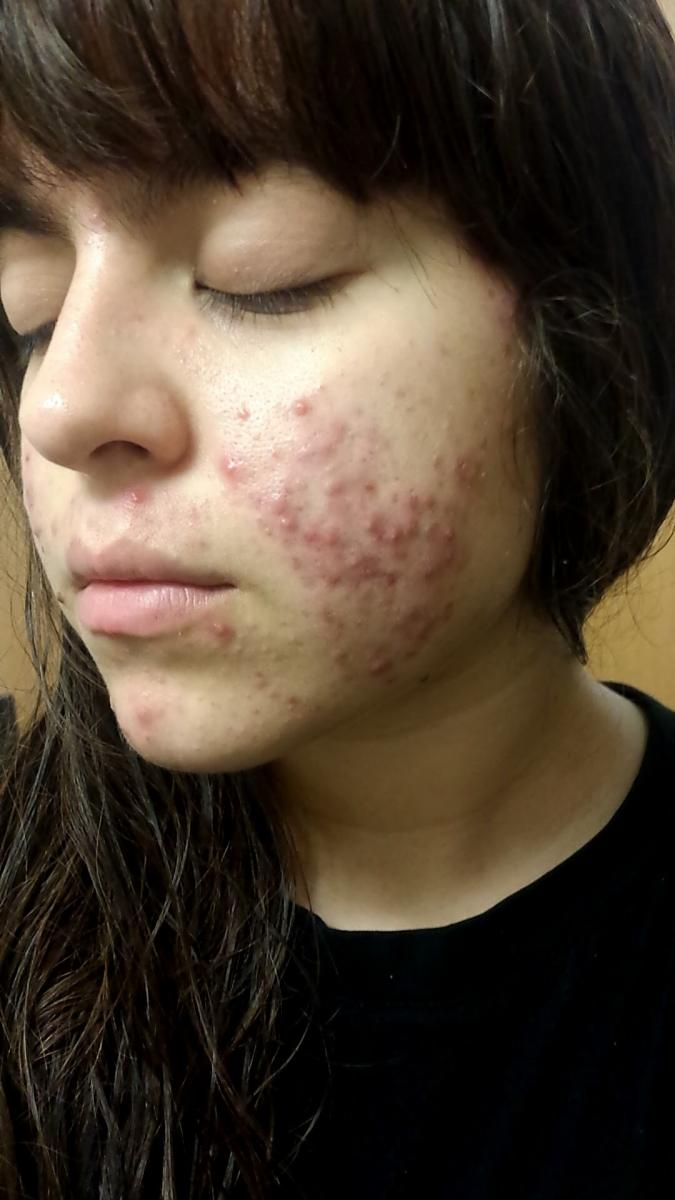 2/15/2016 (Before Accutane)
