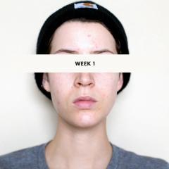Retin-a Micro .04% - Week 1