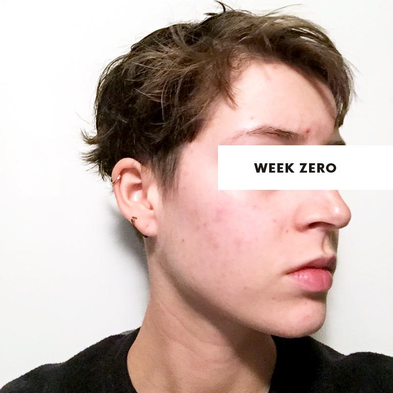 retin a micro