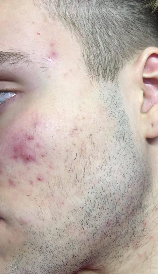 effizinc rubozinc acné homme