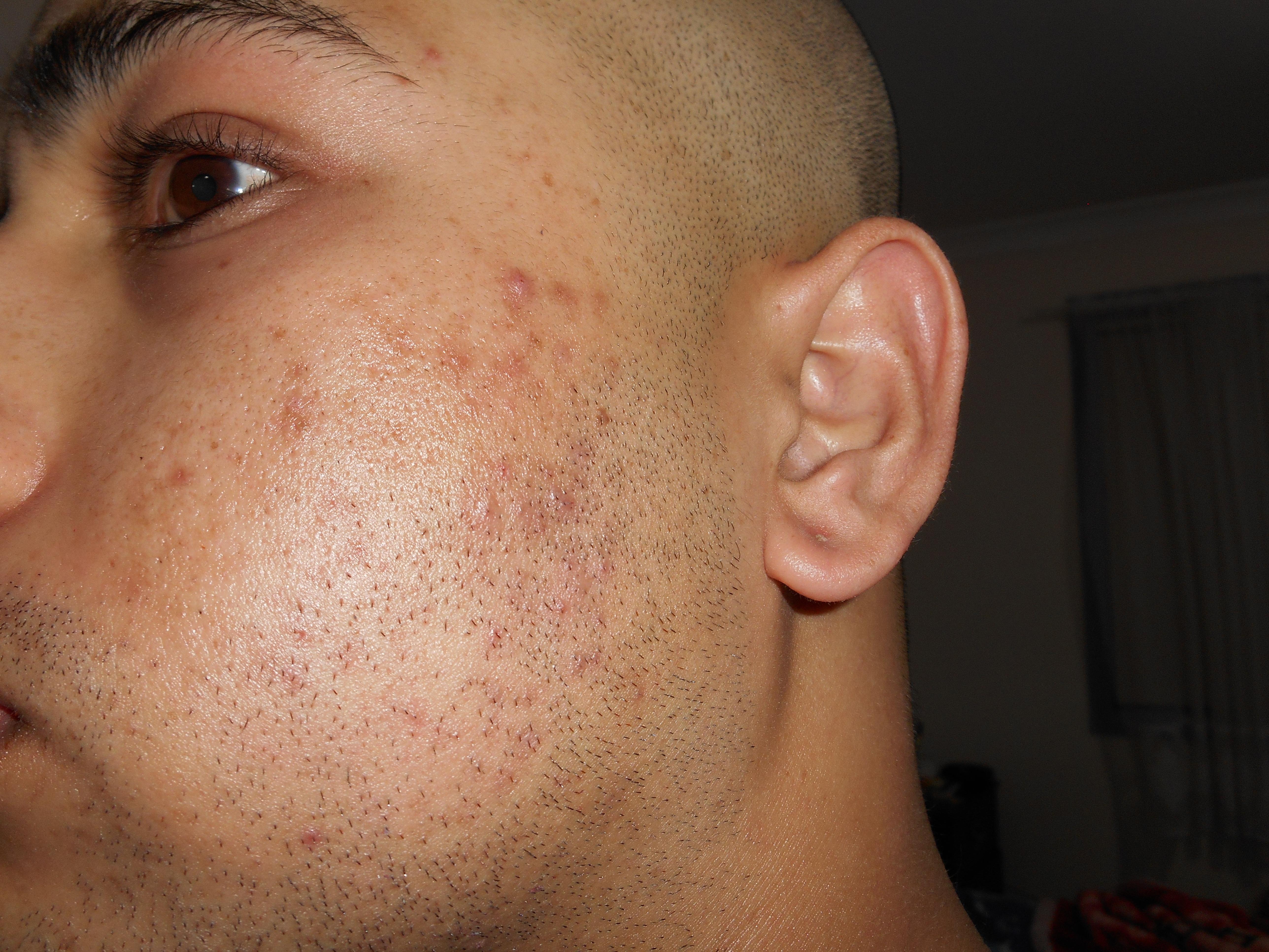 Maschere efficaci a partire da un tempo su una faccia