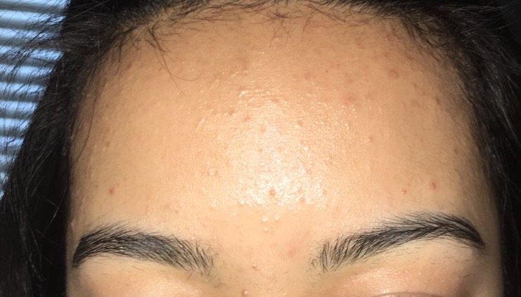 Image result for Pimple On Forehead