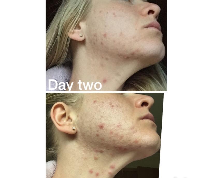 Doxycycline As Acne Treatment