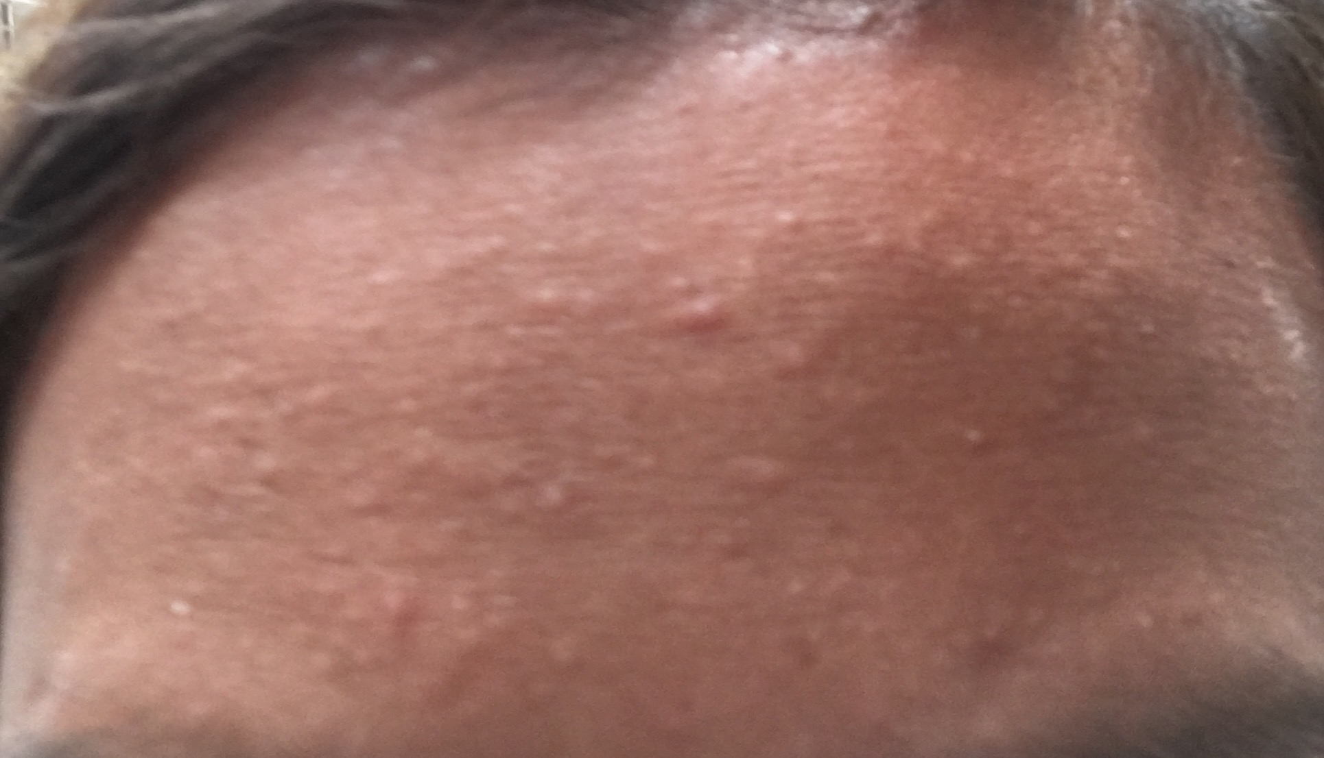 Small bumps on forehead? - General acne discussion - Acne ...