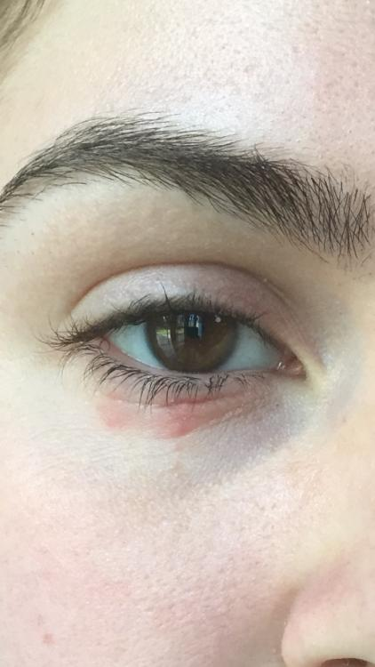 Small red bumps under eyes