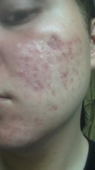Hyperpigmentation Medications Over The Counter Acne