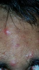 Need held diagnosing what kind of acne