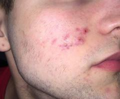 Pimples/Hyperpigmentation/Scars that won't go away