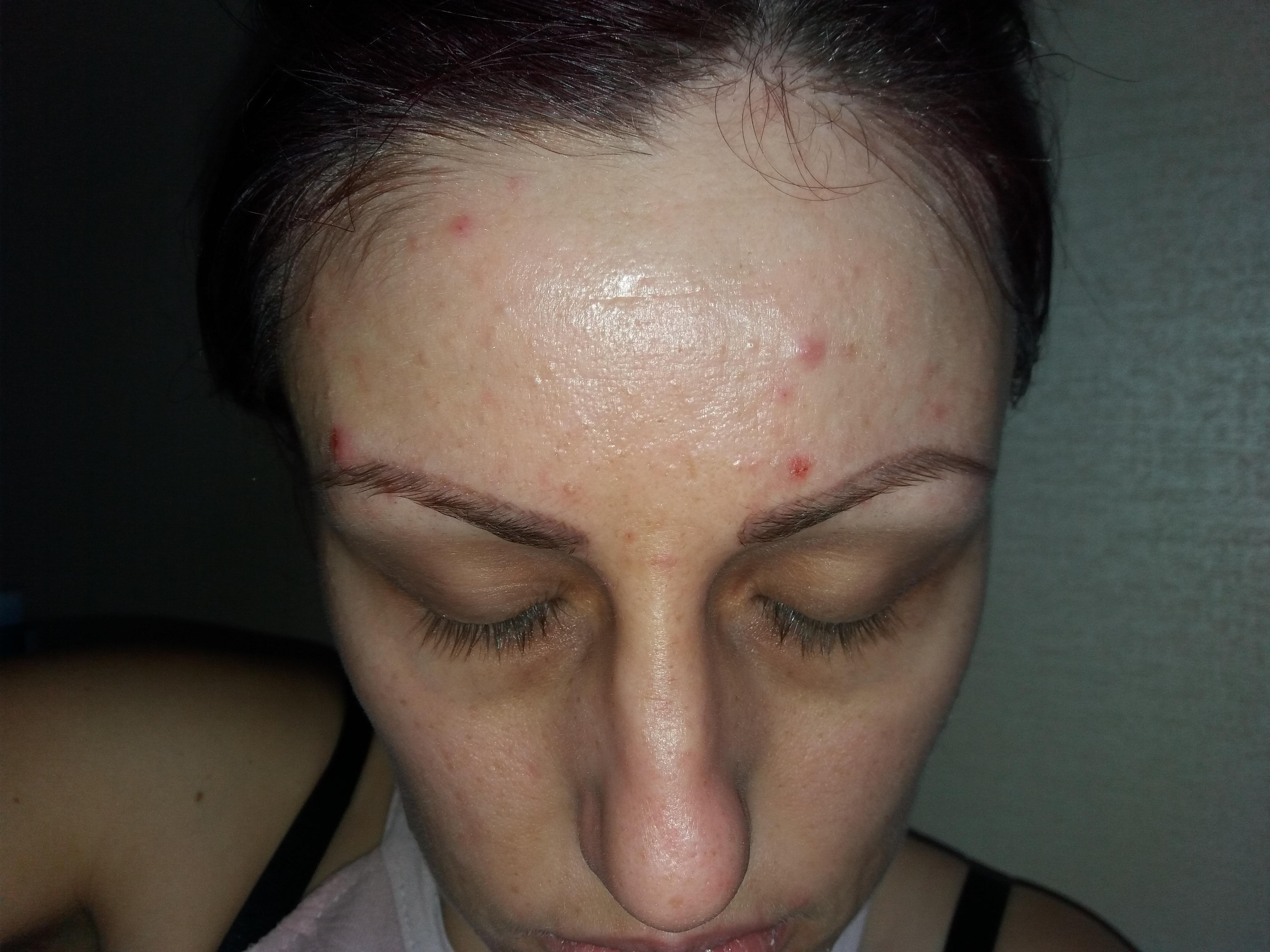 accutane acne adult