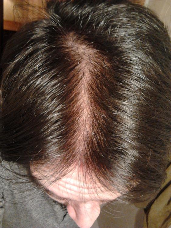accutane hair