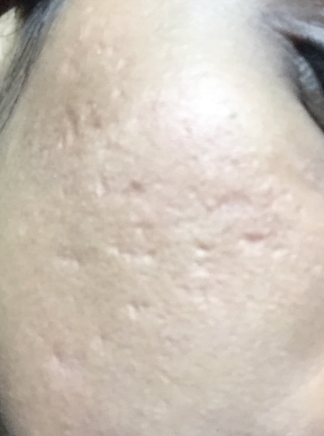 Moderate-Severe acne scars treatment (Post 2 rounds of ...