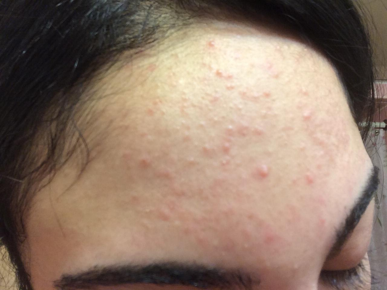 what are these small slightly red bumps on my forehead ...