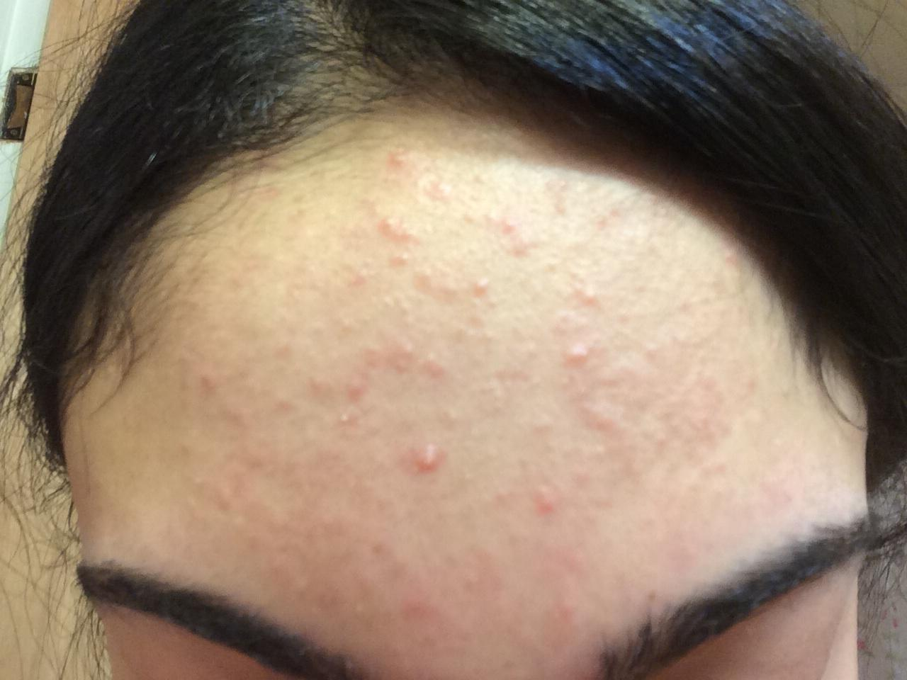 What Are These Small Slightly Red Bumps On My Forehead