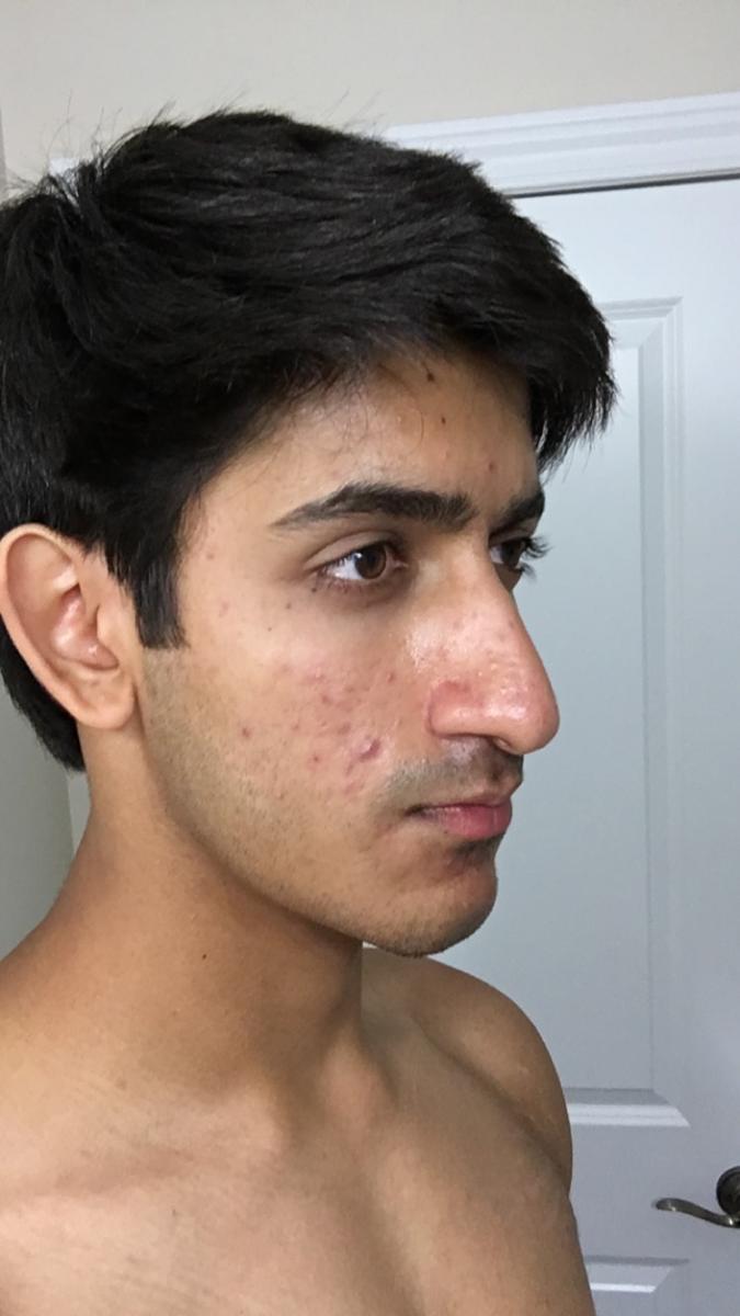 Day 1 (Left)