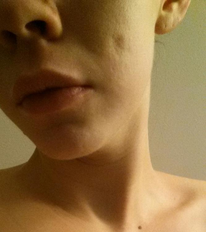 Acne steroid shot super potent steroid cream