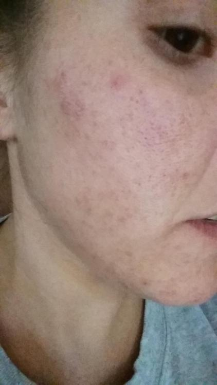 how to fix hyperpigmentation from scars