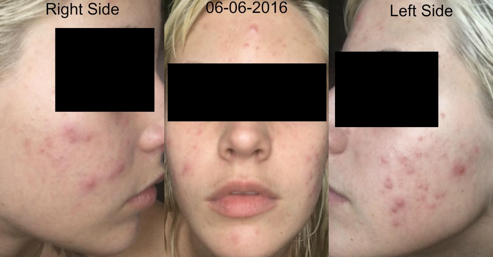 YoDerm 5 Weeks After Starting Retin-A and Aczone Regimen