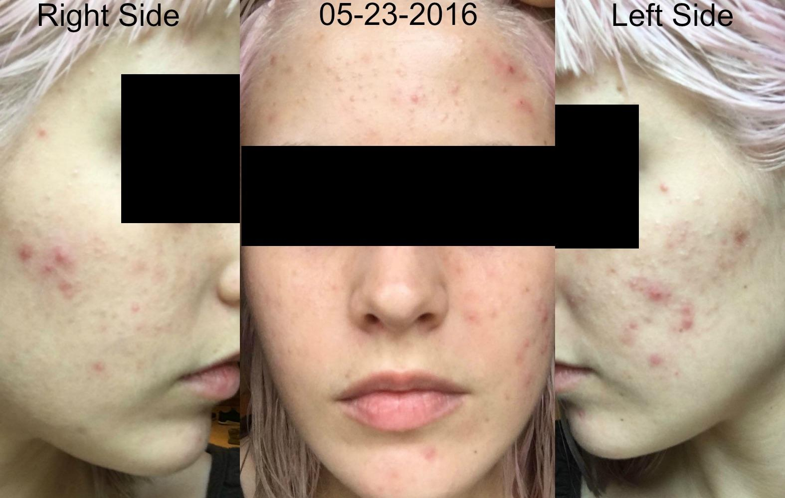 YoDerm 3 Weeks After Starting Retin-A and Aczone Regimen