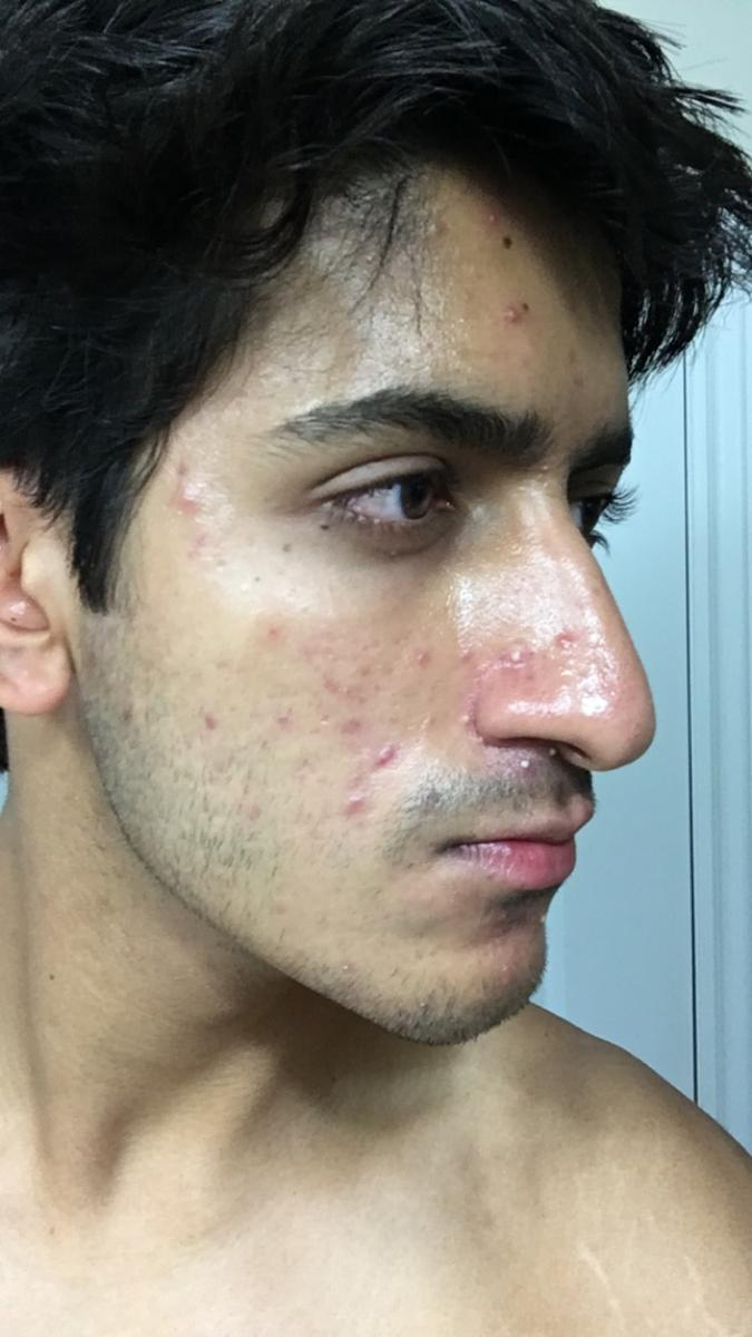 Buying real accutane without prescription
