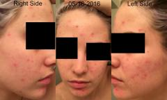 YoDerm 2 Weeks After Starting Aczone and Retin-A Regimen