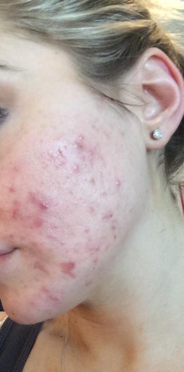 acne 1.jpg