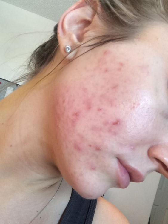 acne 3.jpg