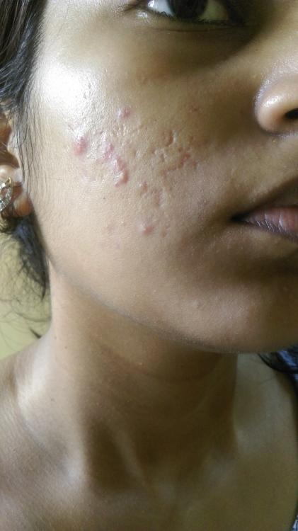 Will Retin A Work On These Scars Scar Treatments Acne Org