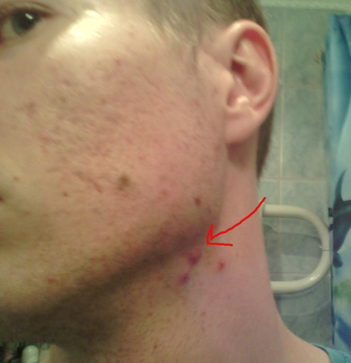 Does masturbation help acne