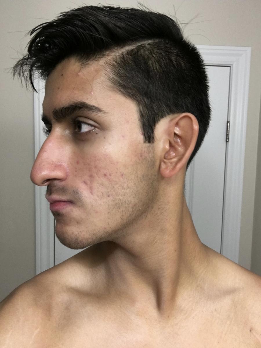 Week 5 (Left)