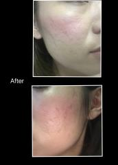 liquid silicone for acne scar
