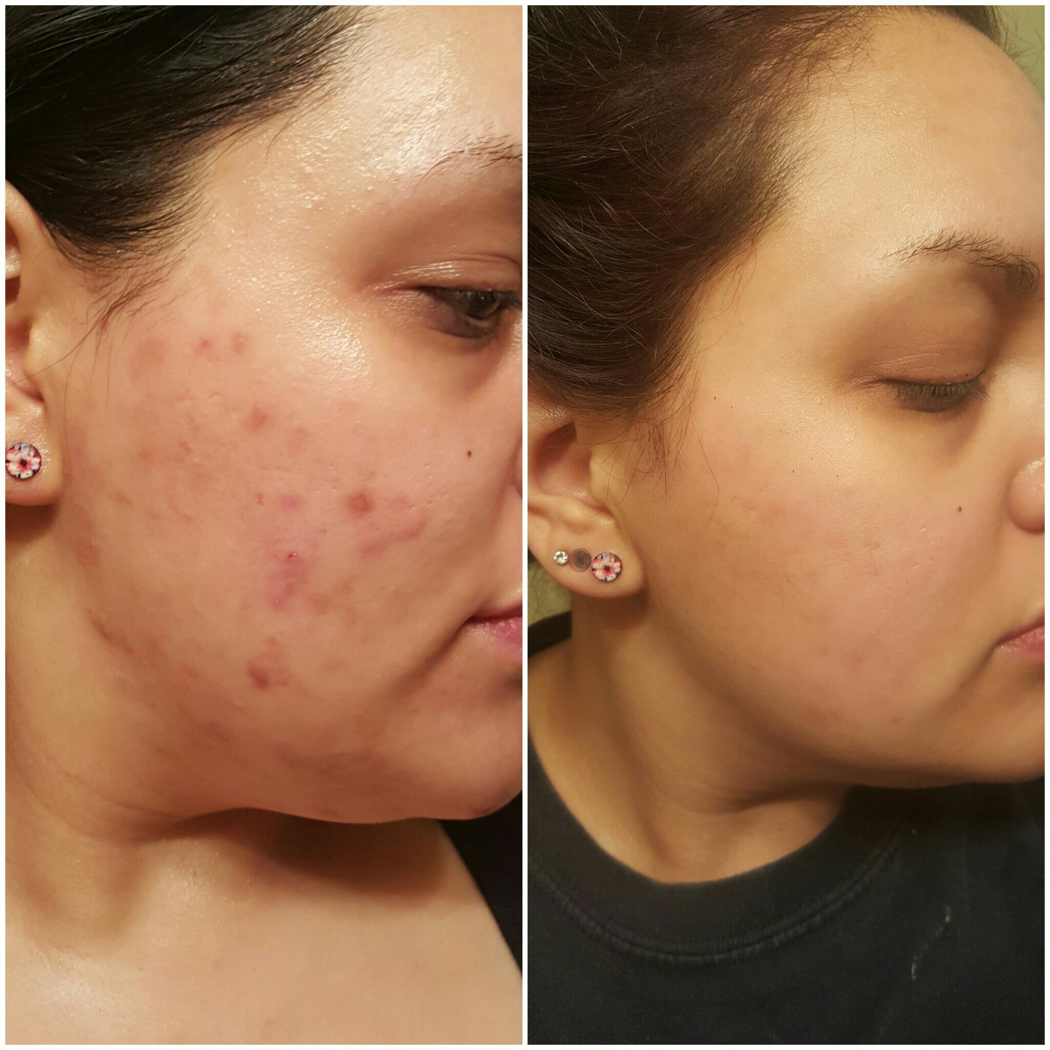 accutane acne pregnancy