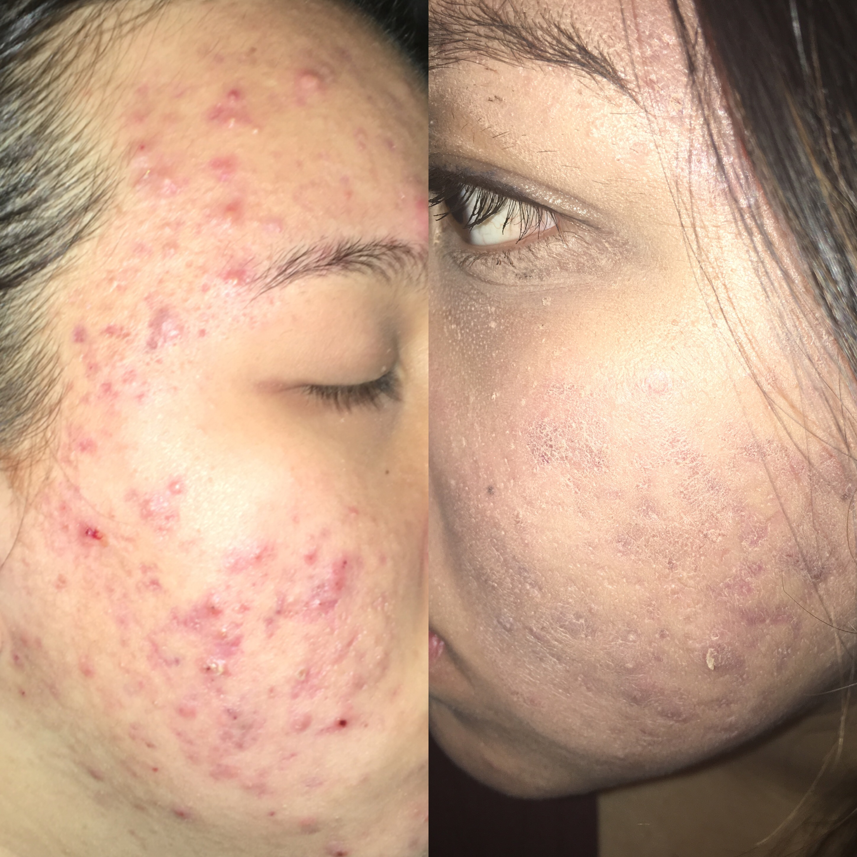 how to fix cakey foundation with severe acne cosmetics
