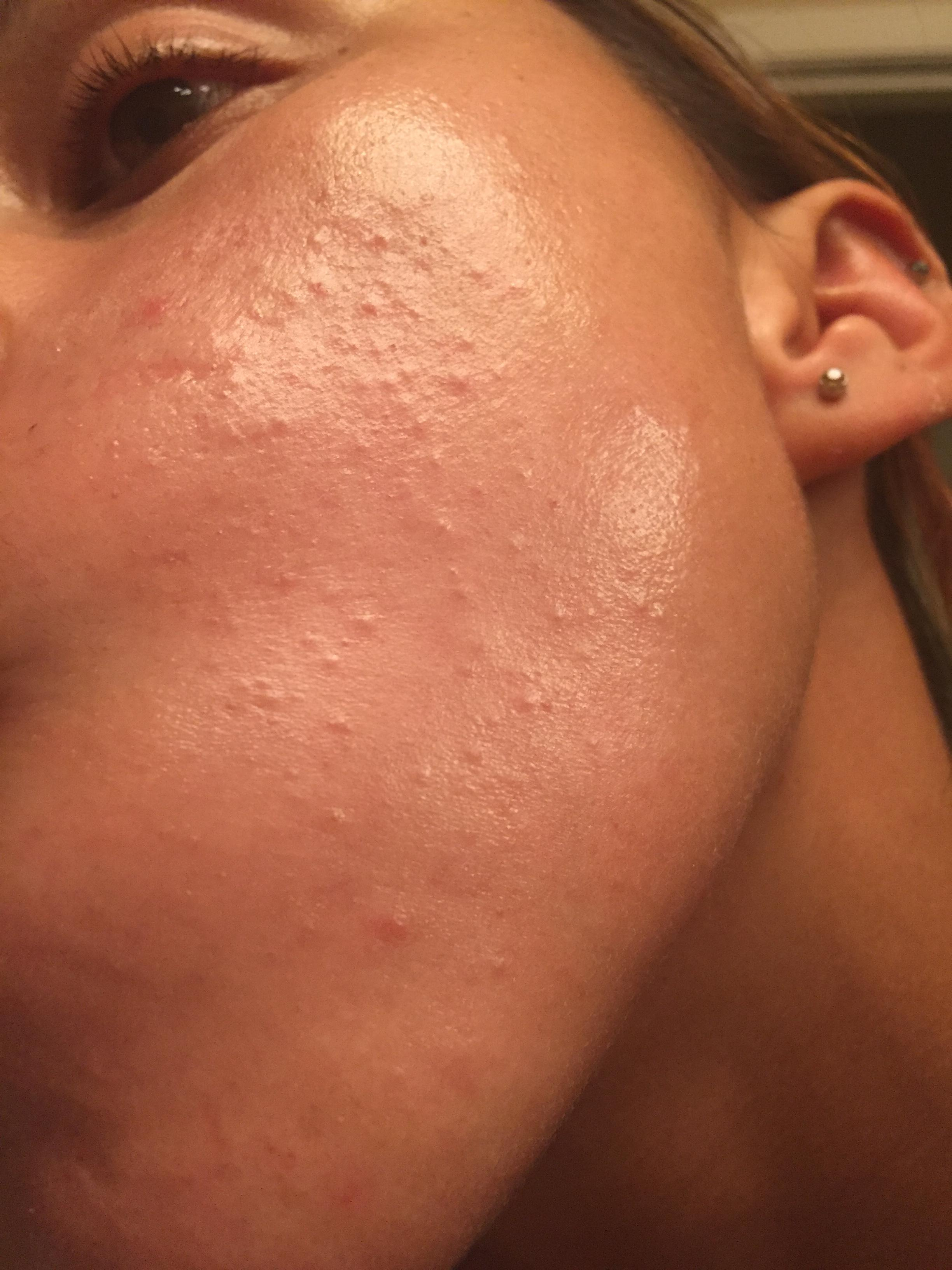 picture Comedonal Acne – What Is It And How To Treat It
