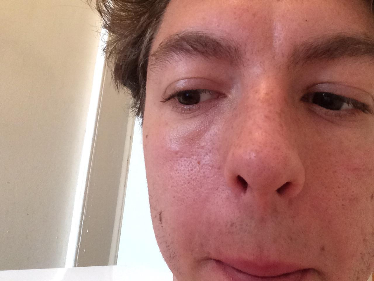how to get blackheads to go away