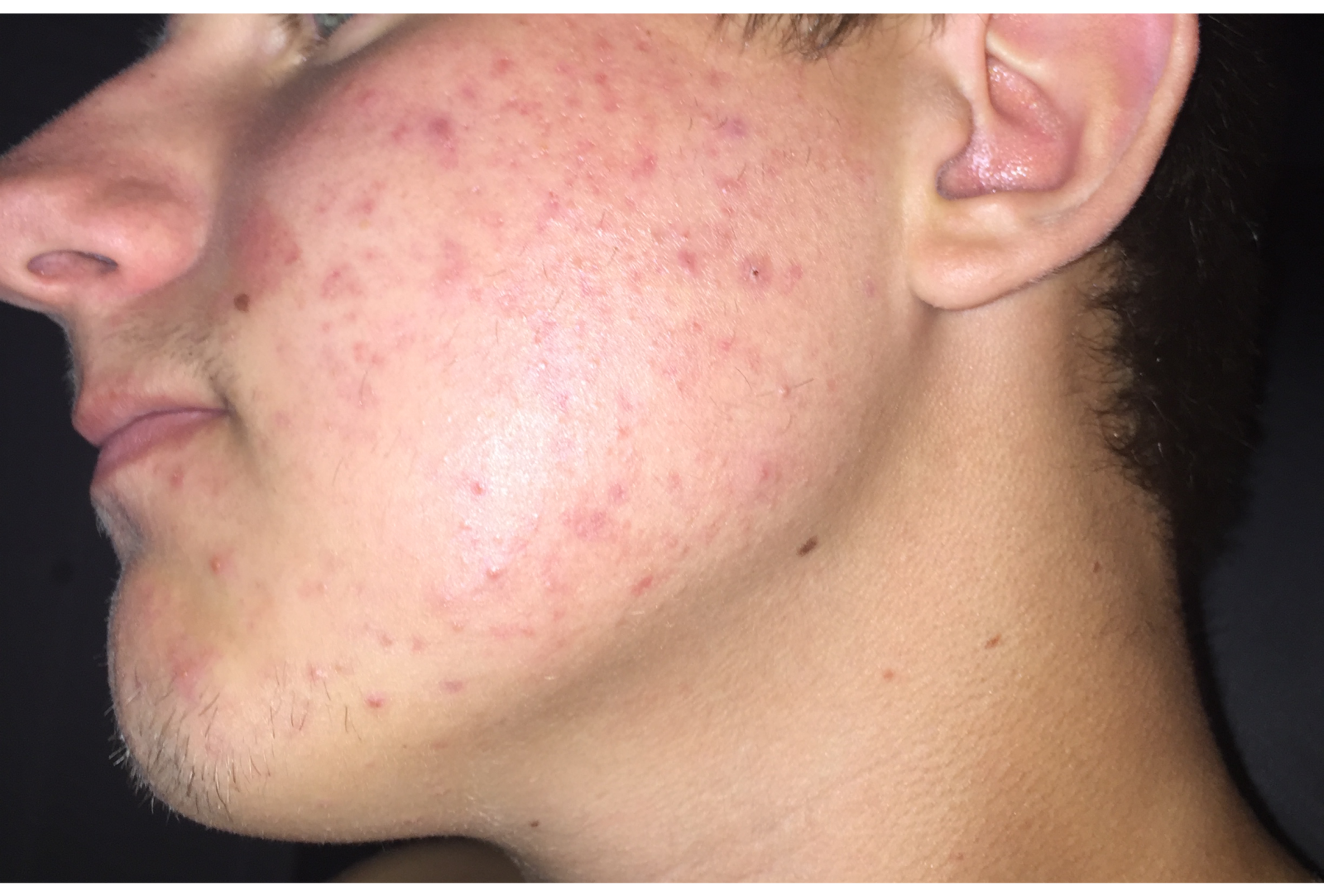 Pigmentation or Scars on cheeks would like some advice.