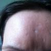 acne & chicken pock scars 1
