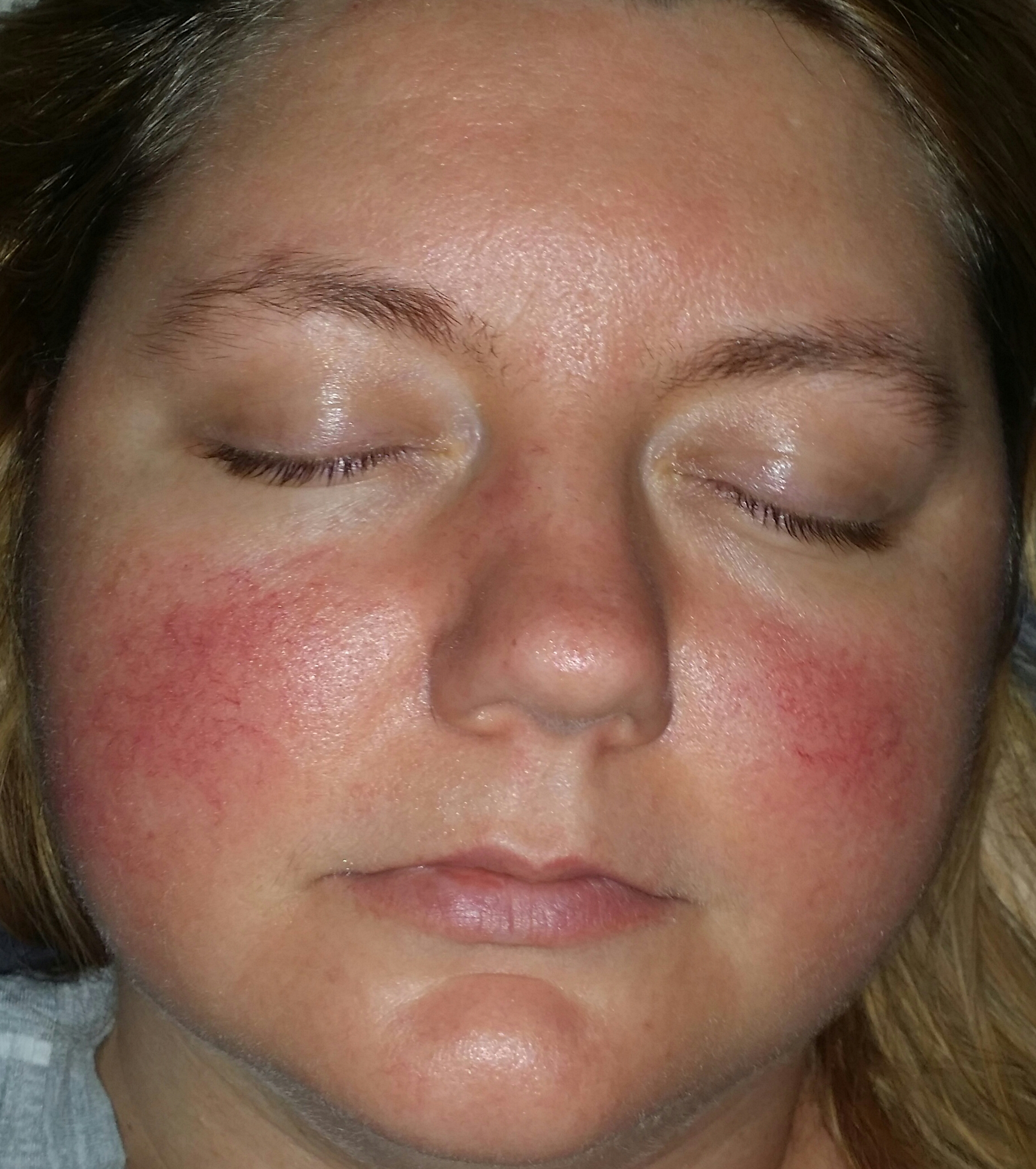 Is it rosacea? - Rosacea & facial redness - Acne.org Community