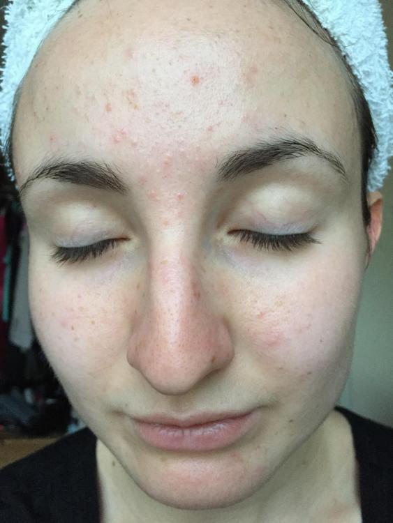 Post Dianette, Pre Skin Clinic Treatments.JPG
